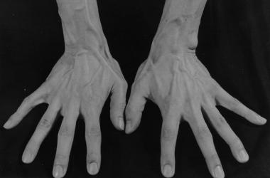 Почему хрустеть пальцами опасно