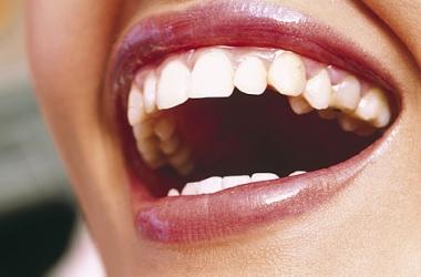 Отбеливание зубов с помощью помады (ФОТО)