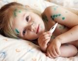 Ветрянка у детей:  симптомы, лечение и периоды заражения