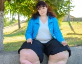 """Героиня """"Я соромлюсь свого тіла""""  вернулась из Германии с новыми ногами"""